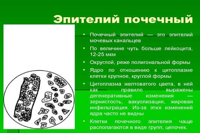 Переходный эпителий в моче: причины и виды клеток в составе урины
