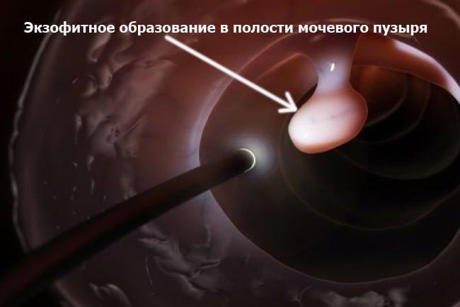 Экзофитные образования в мочевом пузыре