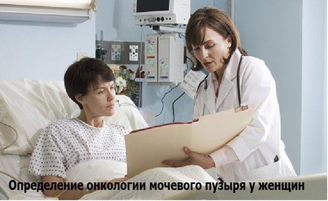 Онкология мочевого пузыря у женщин