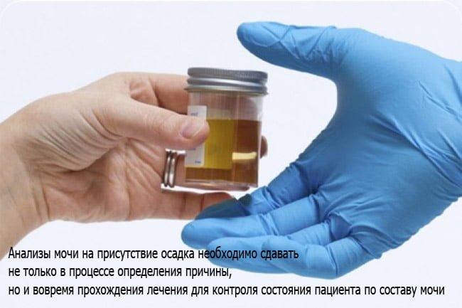 Осадок в моче после болезни