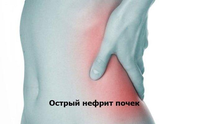 острый нефрит терапия