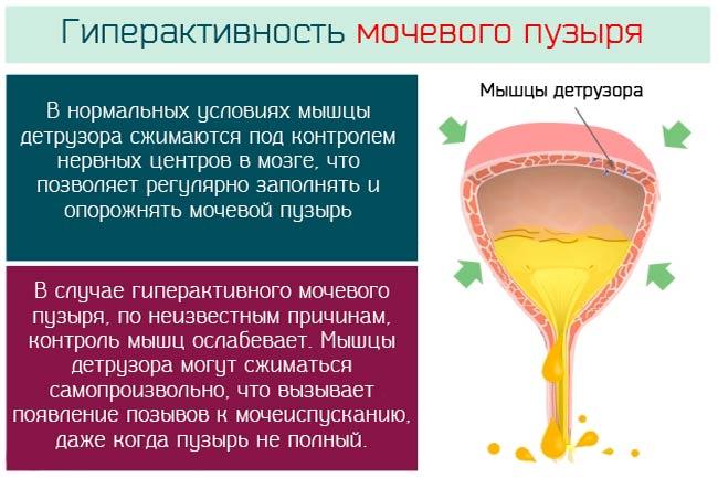 Лечение мочевого пузыря: виды заболеваний, профилактика