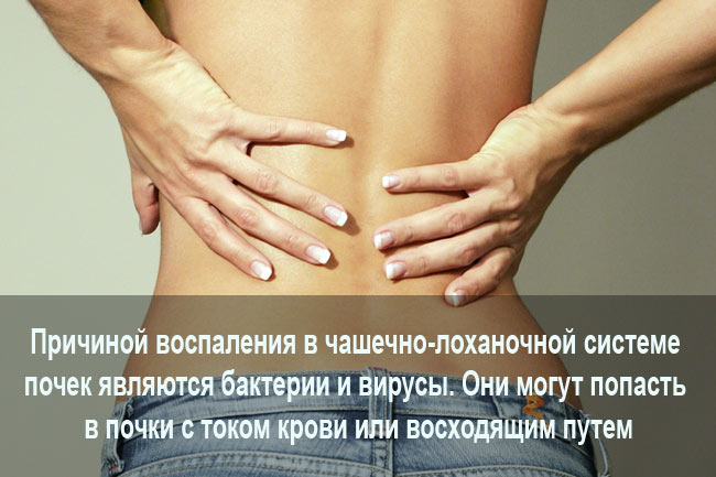 Причины пиелонефрита у женщин