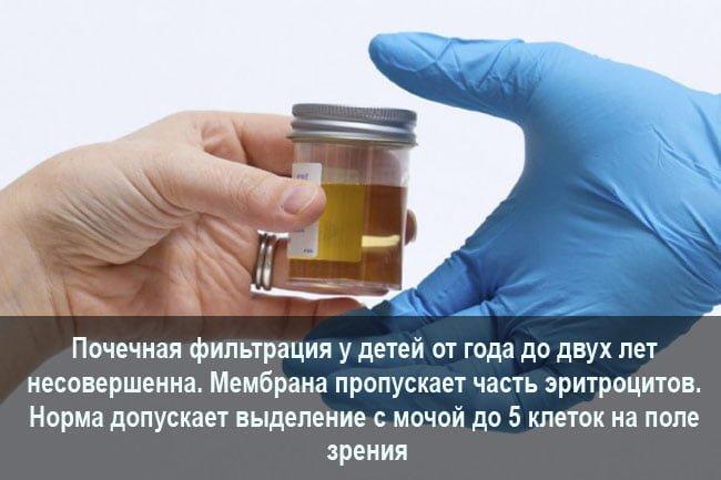 Нормальное соотношение эритроцитов в моче
