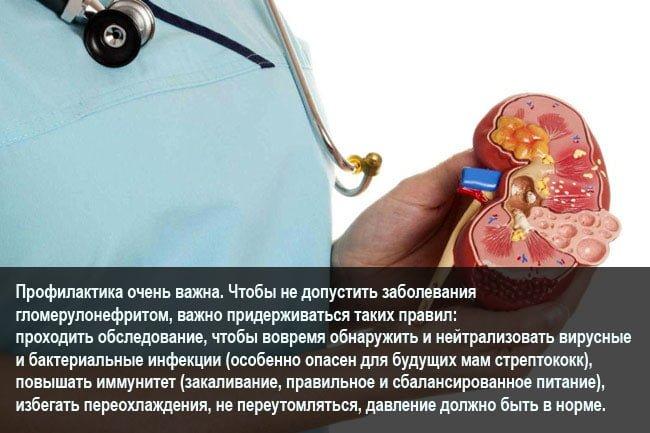 Гломерулонефрит и беременность: причины, лечение, профилактика