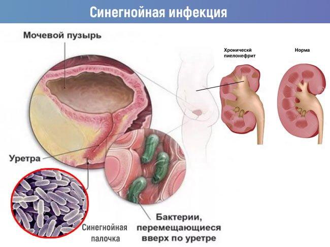 синегнойная инфекция мочевыводящих путей