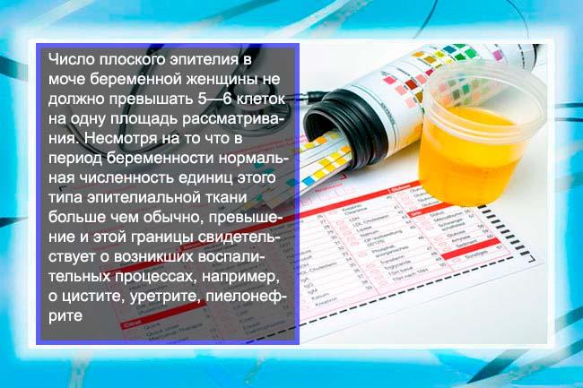 Клеточный осадок в урине беременных