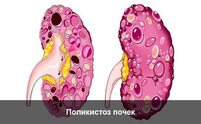 Поликистозная болезнь