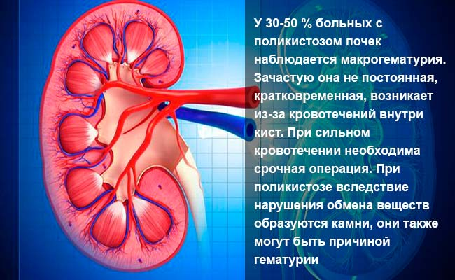 Симптомы поликистоза