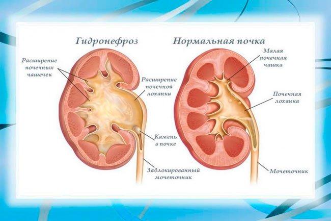 Почечный гидронефроз