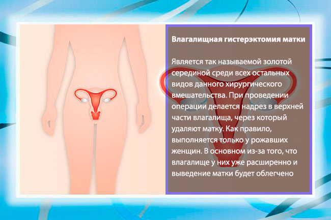Причины сужения мочевого канала