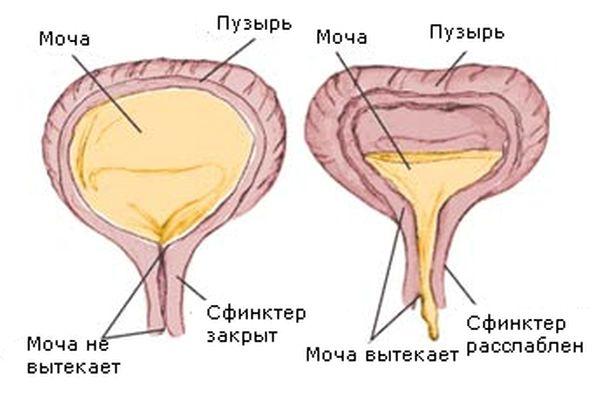 Заболевания почек и мочевыводящих путей: нейрогенный мочевой пузырь