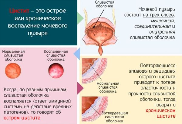 Острый и хронический цистит у мужчин: полезно знать