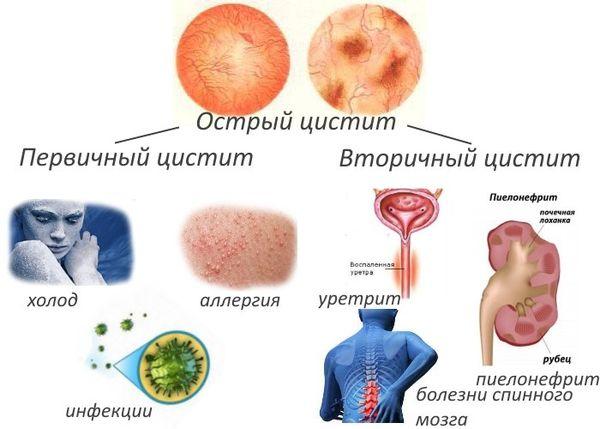 причины развития первичного и вторичного цистита