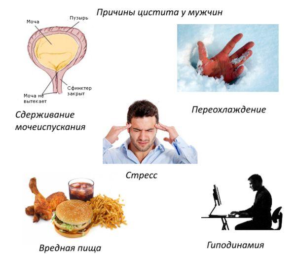 Причины возникновения цистита у мужчин