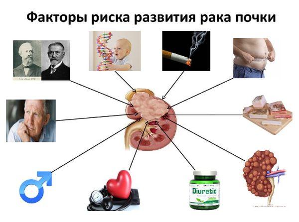 Причины и факторы риска развития опухоли