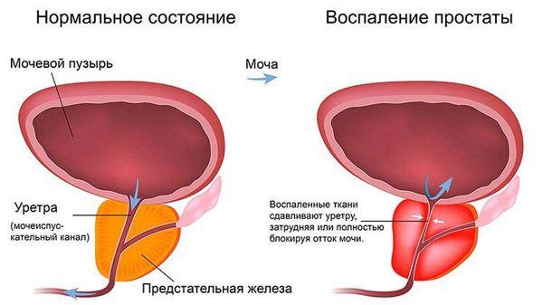 Воспаление простаты у мужчин